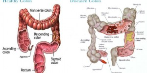 colon_cancer_screening